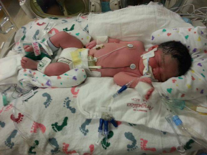 neonata intubata