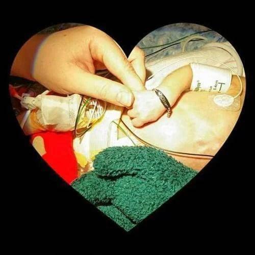 cuore mani prematuro