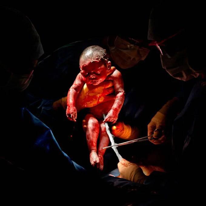 bimbo nato con cesareo