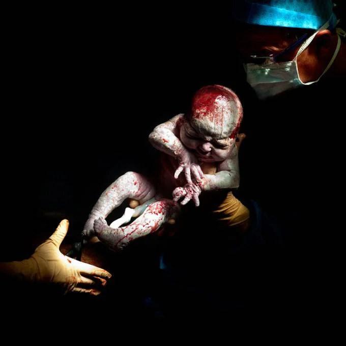 neonato appena estratto grembo