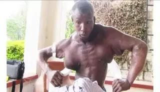 Be thankful for your body: Kenyan Bodybuilder Ronny Rono dies after botched Synthol Oil injections