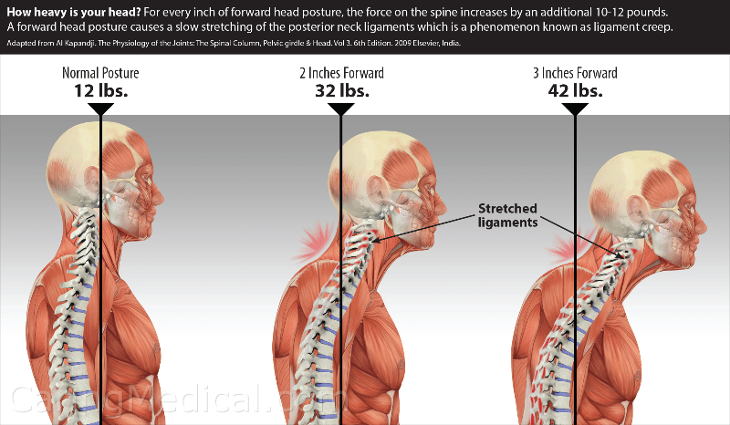 How to Correct Your Posture to Release Upper Back And Neck Pain