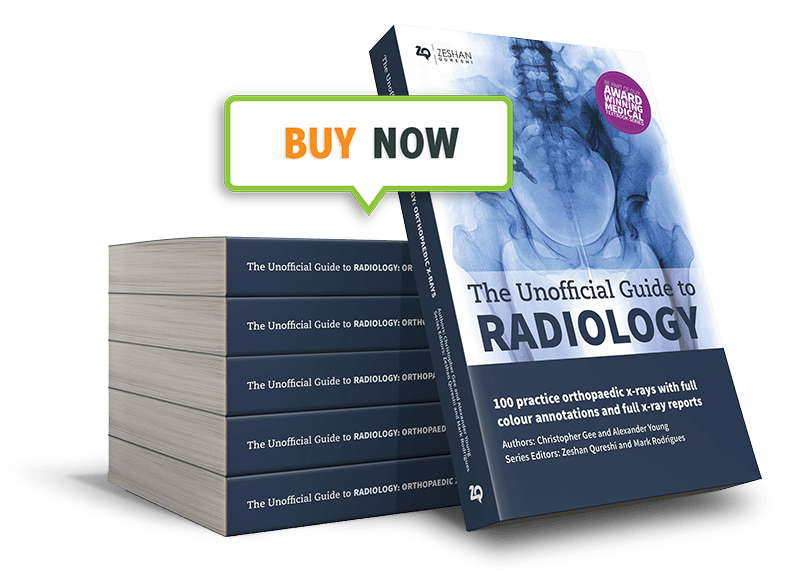 The Unoffical Guide To Radiology: 100 practice orthopaedic x-rays