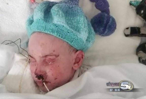 """Niño con síndrome rara vio a Jesús en la habitación del hospital: """"El sonrió para mí"""""""