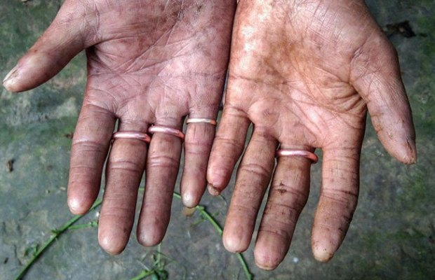 Family Born With No Fingerprints