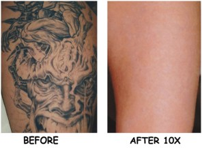 laser-tattoo-removal-sd