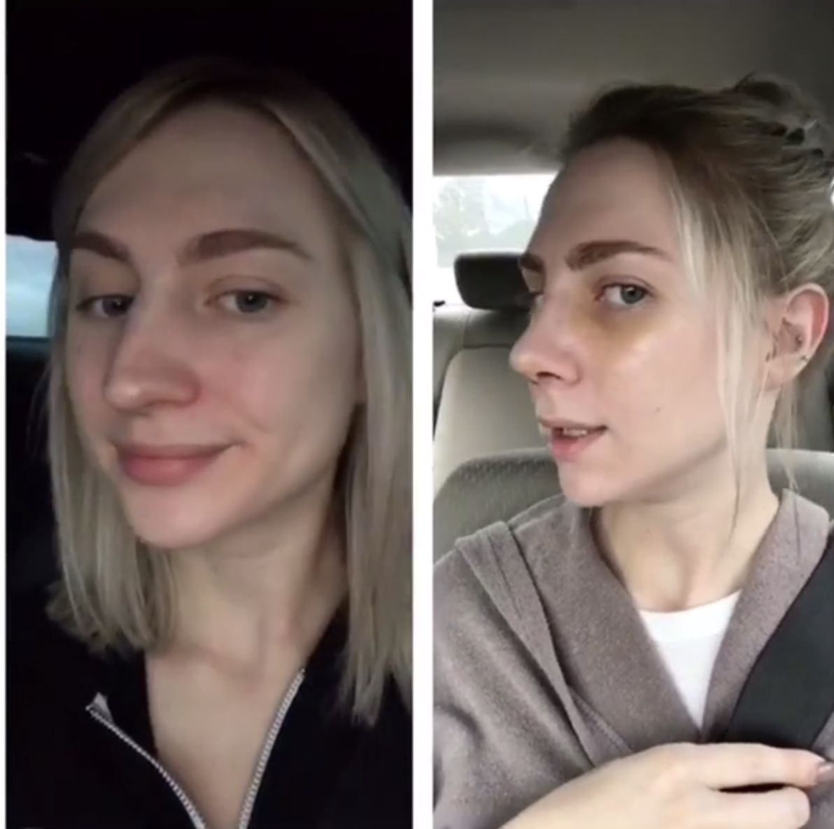 Nose Job: Surgery, Recovery, Cast Removal & Two Week Post-Op Reveal