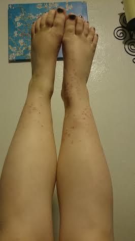 Both legs 10-5-15