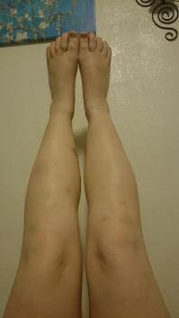 both legs 18 months 25 days 4-28-16
