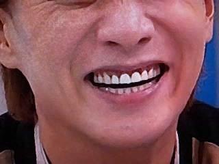歯が綺麗な有名人