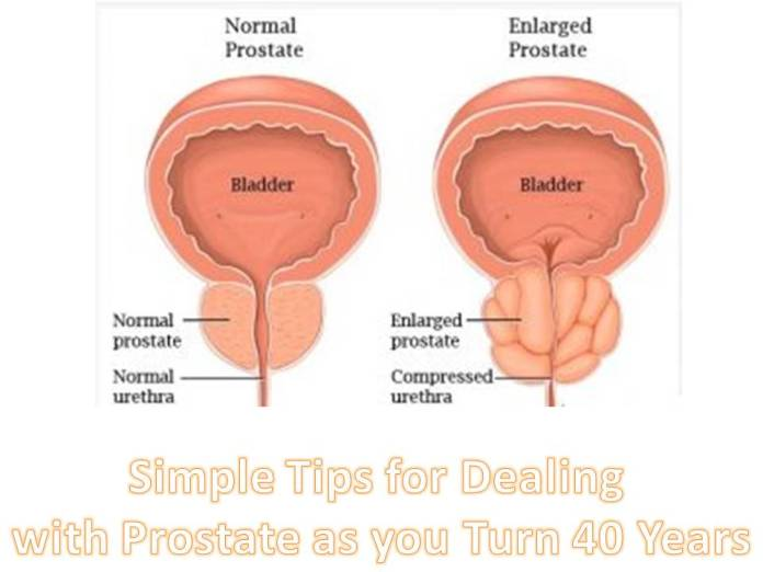 Prostate as you Turn 40