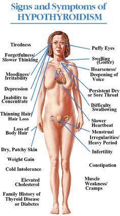 signs and symtoms of hypothyroidism