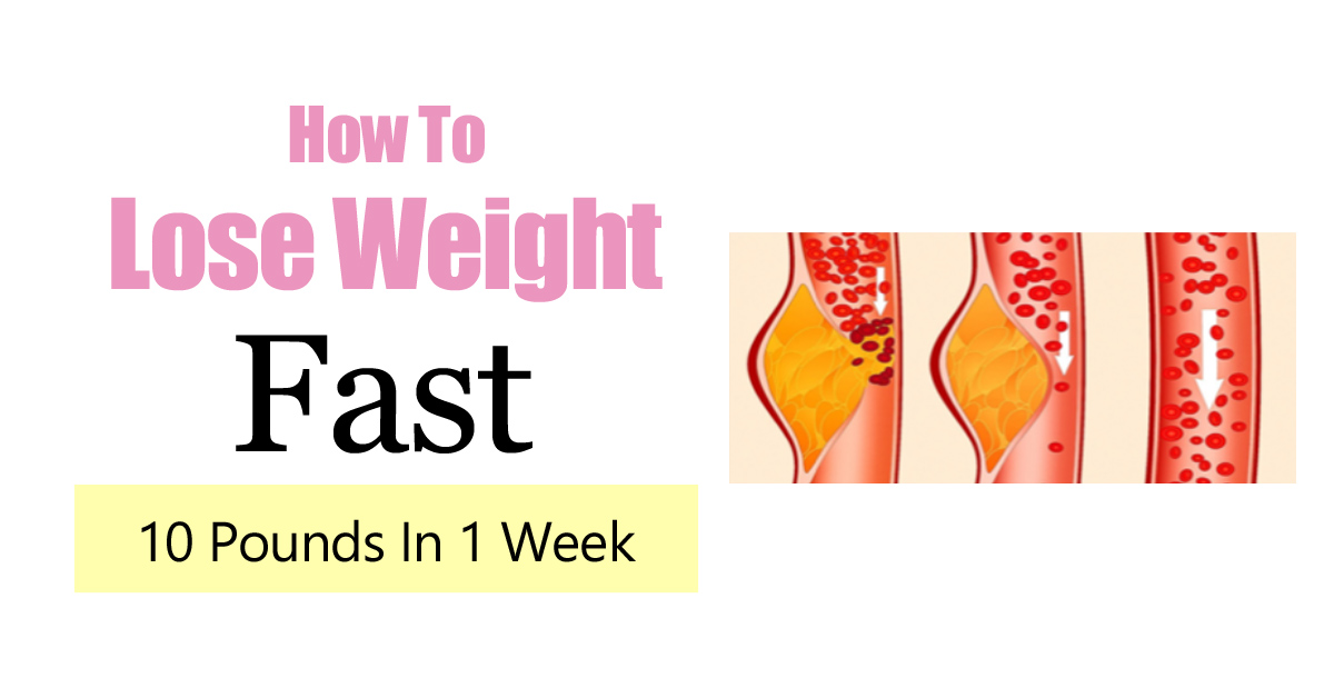 How To Lose Weight Fast – 10 Pounds In 1 Week