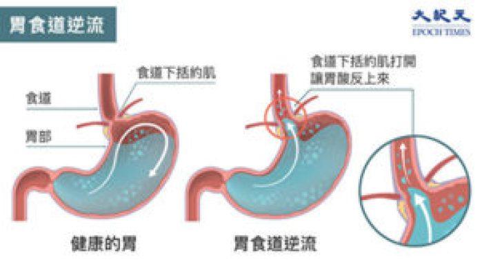 """""""胃食道逆流""""(GERD)指的是胃内涌出的胃酸灼伤食道,进而引起发炎反应的疾病(大纪元)"""