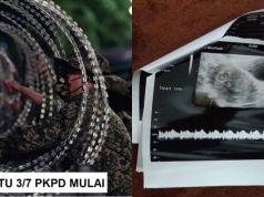 check up kehamilan