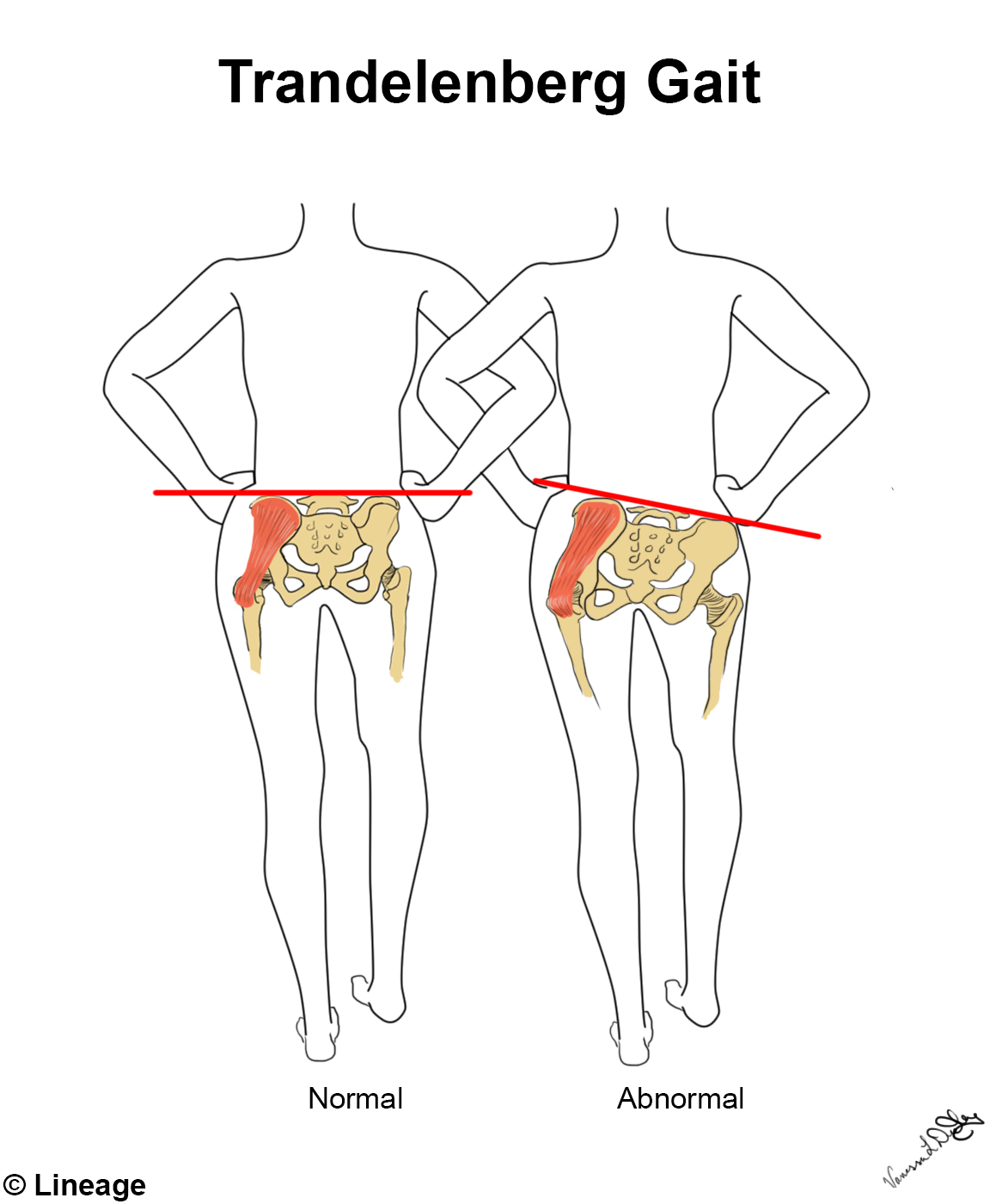 Lower Extremity Innervation