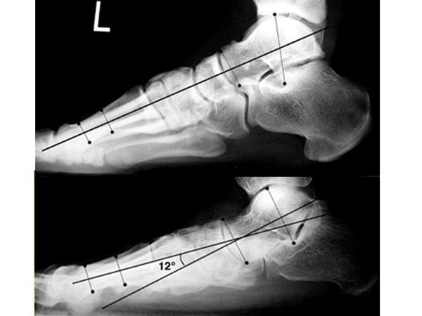 Flexible Pes Planovalgus (Flexible Flatfoot) - Pediatrics ...