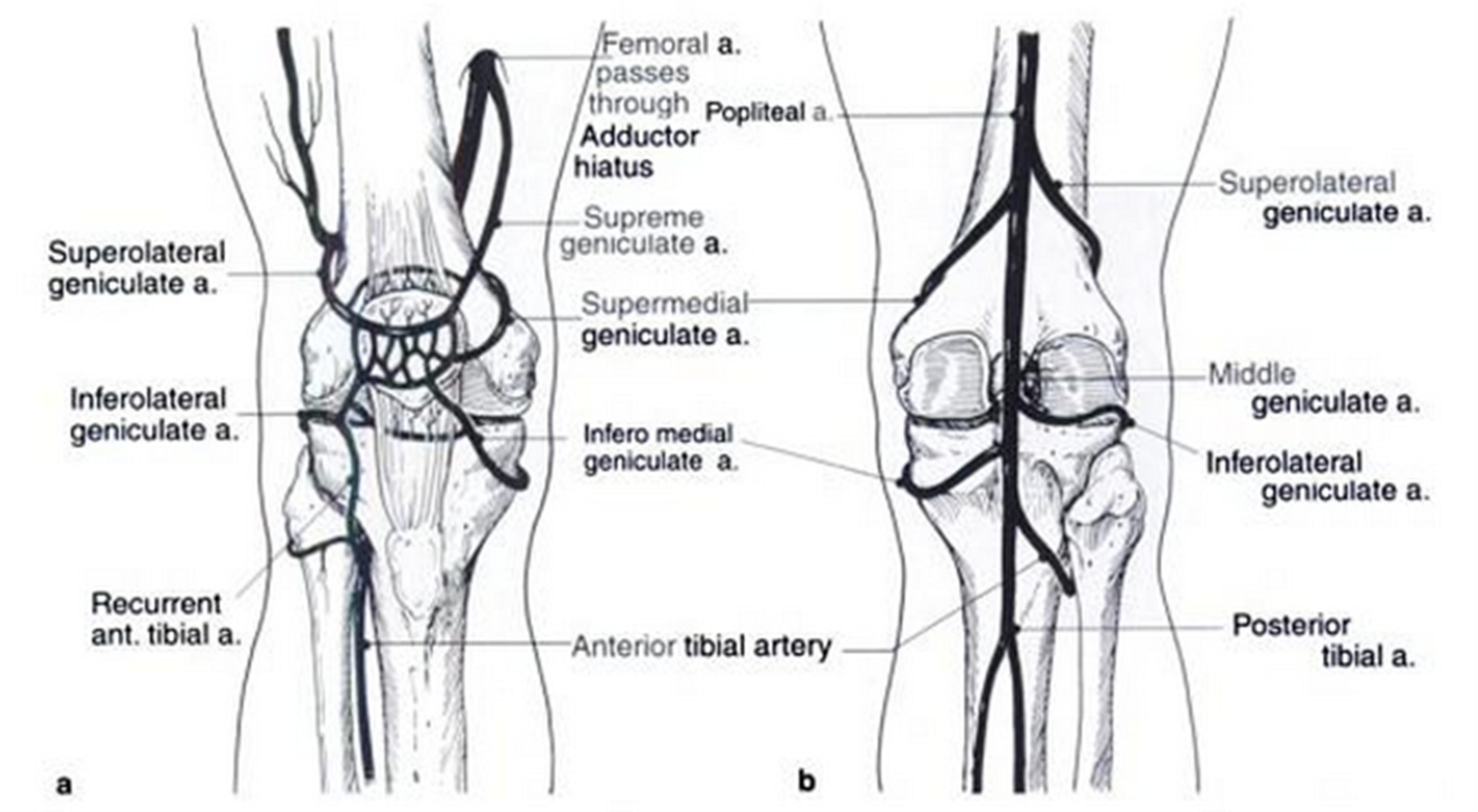 Congenital Dislocation Of Patella