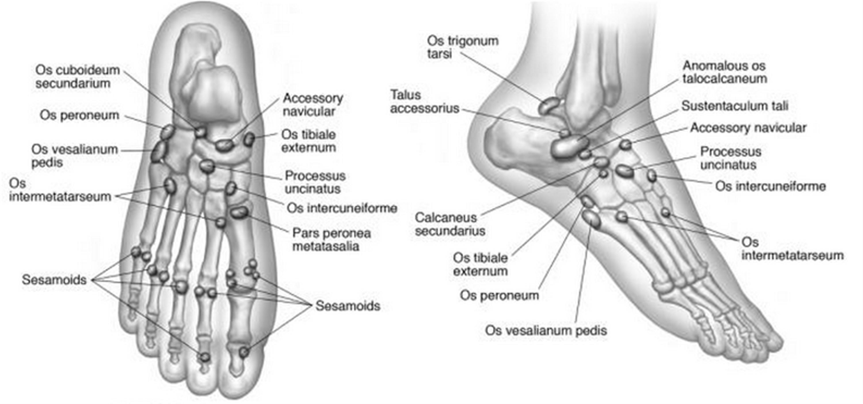 Diagrams Of Fibular Fracture