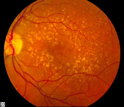 A fundus photo showing intermediate age-related macular degeneration (dry form).  Credit: National Eye Institute, National Institutes of Health, Ref#: EDA2