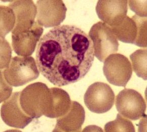 Neutrophil in a Wright's Stain of a blood smear