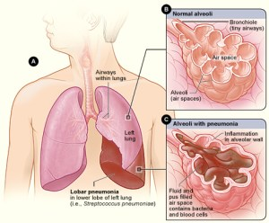 Pneumonia  Simple English Wikipedia, the free encyclopedia