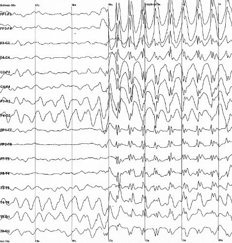 EEG image (Wikipedia commons)