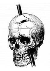 Skull diagram of Phineas Gage