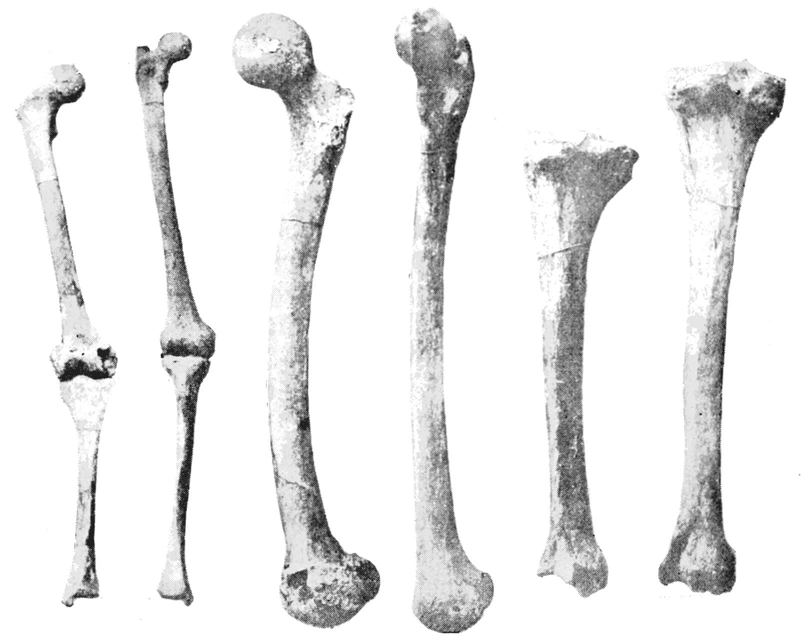 File Psm V44 D639 Showing Leg Bones