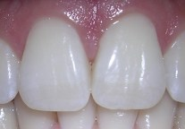 06-10-06centralincisors