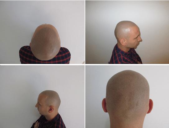 Is scalp micropigmentation worth it?
