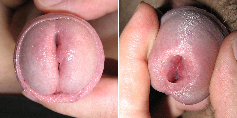 male urethra fucking
