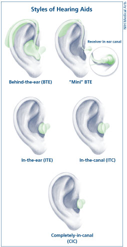 Image illustrating the different types of hear...