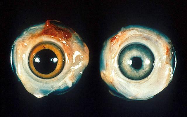 File:Ocular Marek's disease.jpg