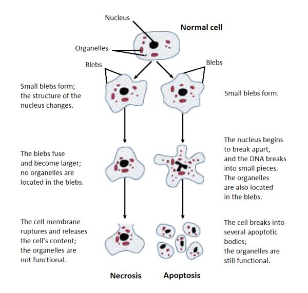 Necrosis - Wikipedia