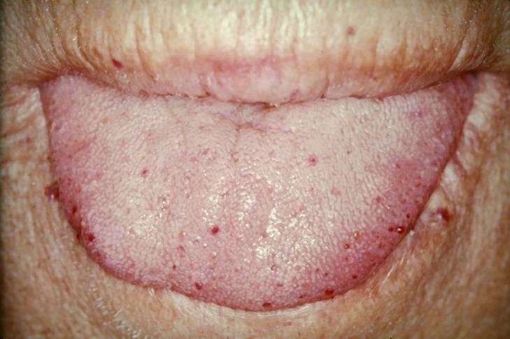 File:TongueTelang.JPG