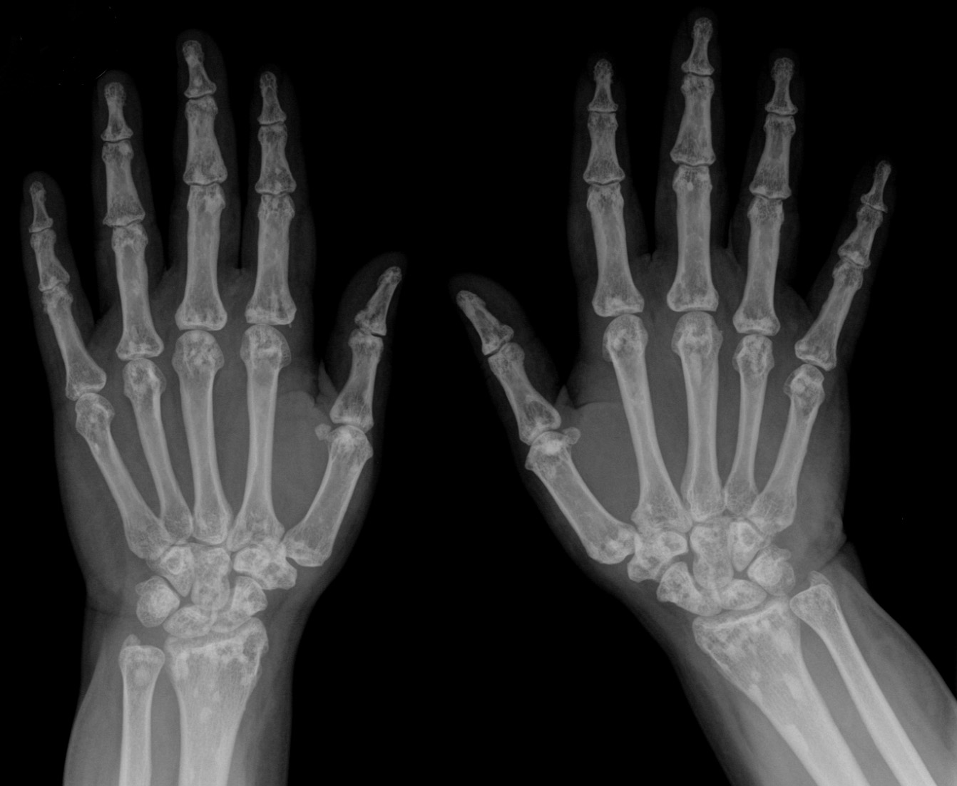 File Osteopoikilie Haende