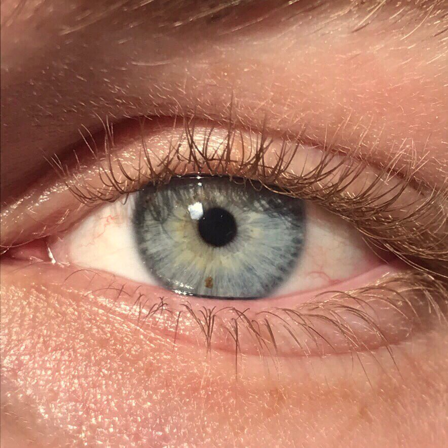لون العين ويكيبيديا