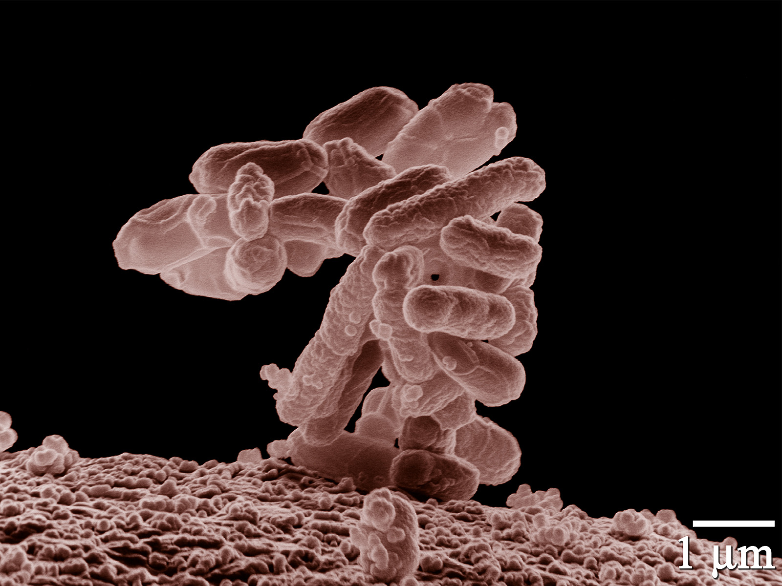 https://i1.wp.com/upload.wikimedia.org/wikipedia/commons/8/82/E_coli_at_10000x.jpg