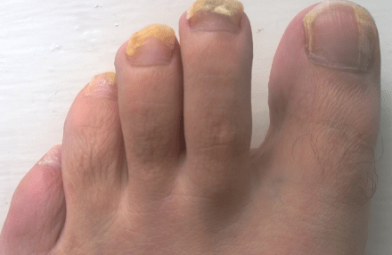 Different Stages Of Nail Fungus In Men Women Pictures