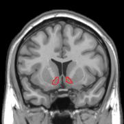 Coronal MRI image showing Nucleus accumbens ci...