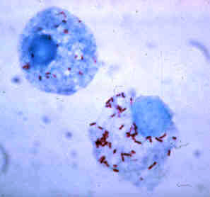 Rickettsia are small bacteria—here stained red...