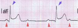 AV-Block III° bei Hinterwandinfarkt: P-Wellen ...