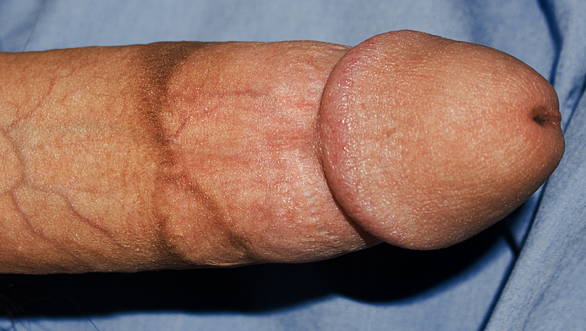 English: A male penis with a prominent circumc...