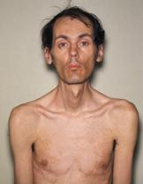 https://i1.wp.com/upload.wikimedia.org/wikipedia/commons/9/95/Myotonic_dystrophy_patient.JPG