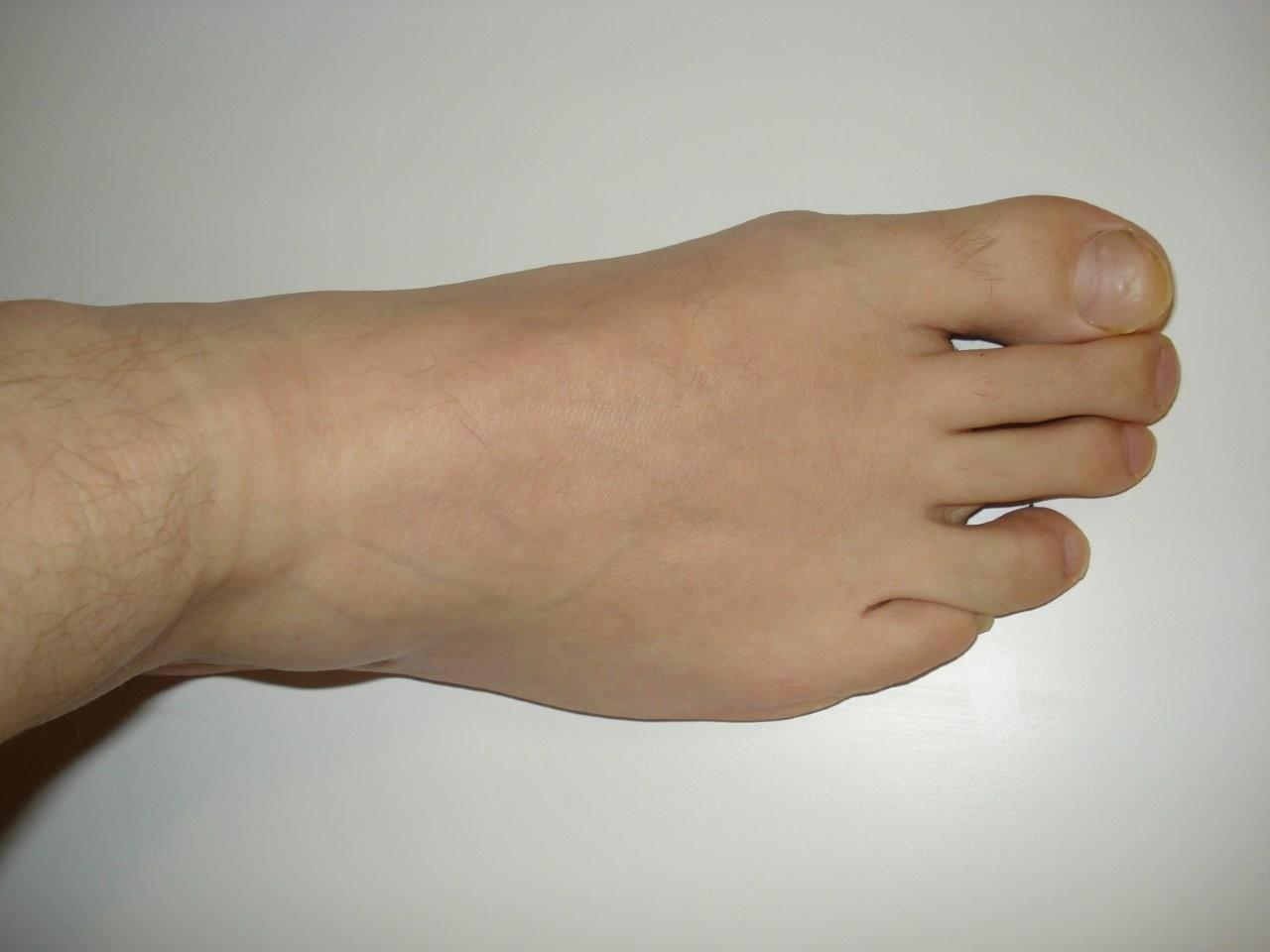 foot conditions pictures
