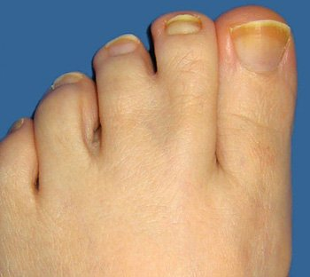 early sign of toenail fungus, symptoms of nail fungus