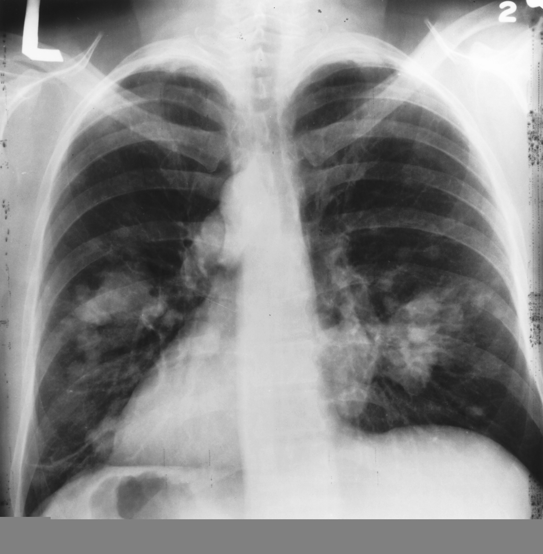 Fichier X Ray Chest Cancer