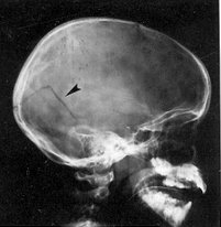 English: Linear Skull Fracture with arrow poin...