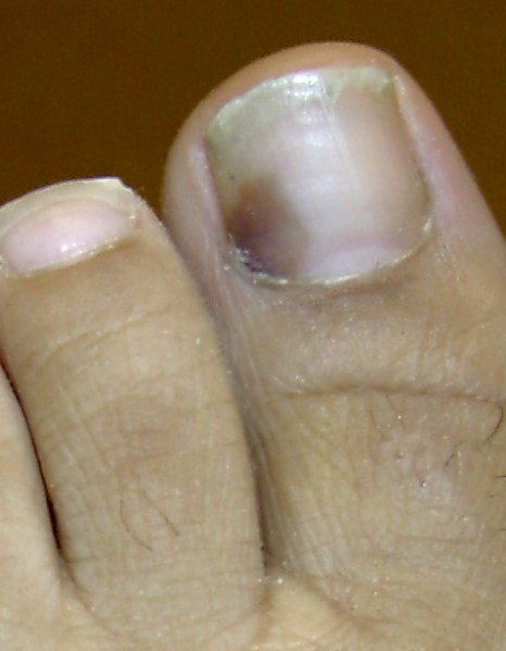 Red Spot Under Toenail - The Complete Home Treatment Guide!